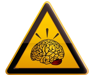 090625_Brain